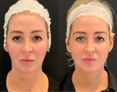 mid face lift cost