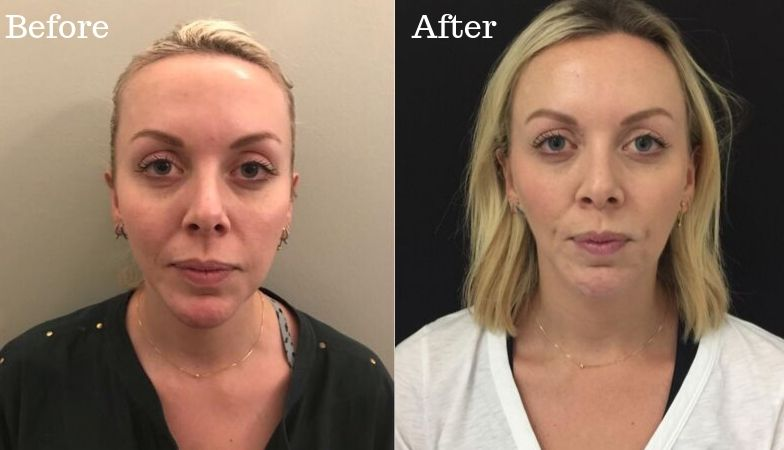 The dark circles treatment that transformed my tired eyes