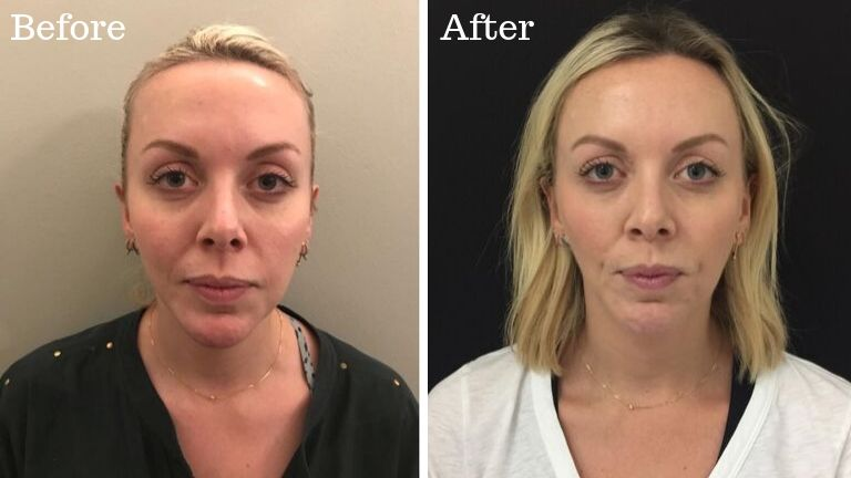 PRP transformation before and after