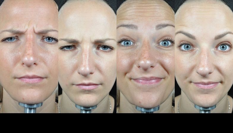 The new Baby Botox – this is exactly what happens to your face