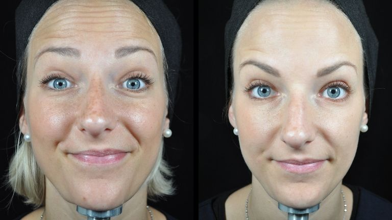 Baby Botox - natural look- medicetics
