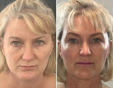 CAREER face lift before and after MAIN (1)