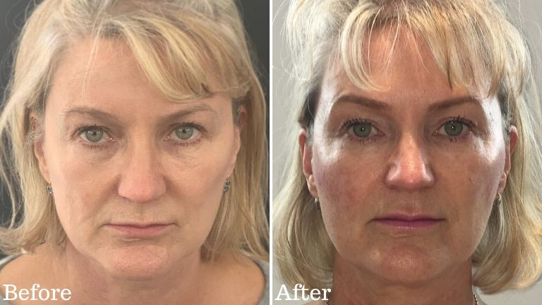 Career face lift before and after MAIN