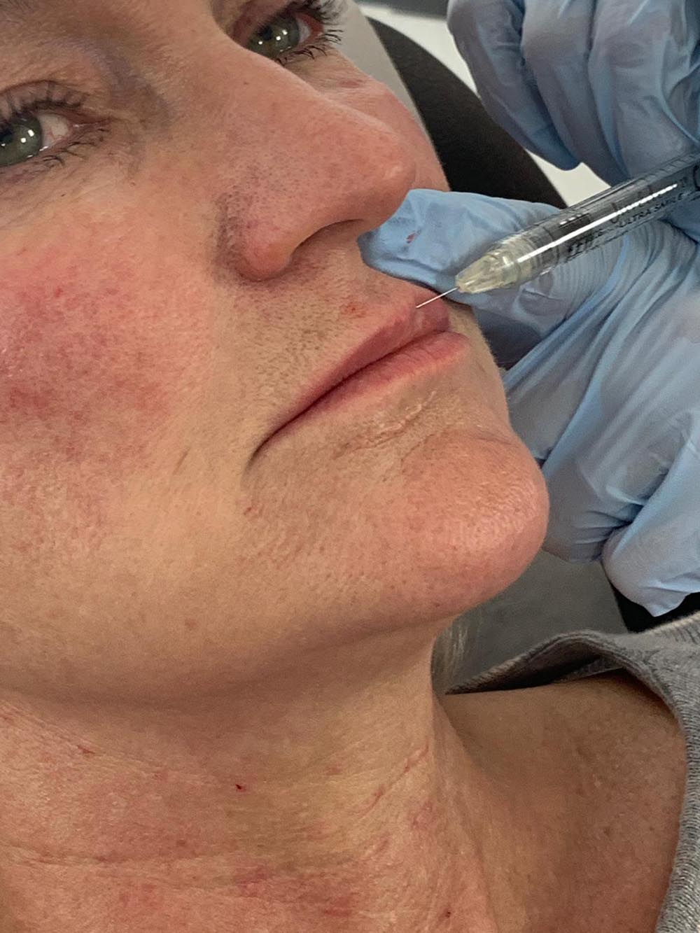 Lip contouring career facelift new
