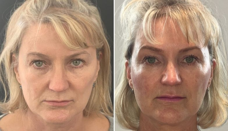 The non-surgical face lift that instantly transformed this woman's face