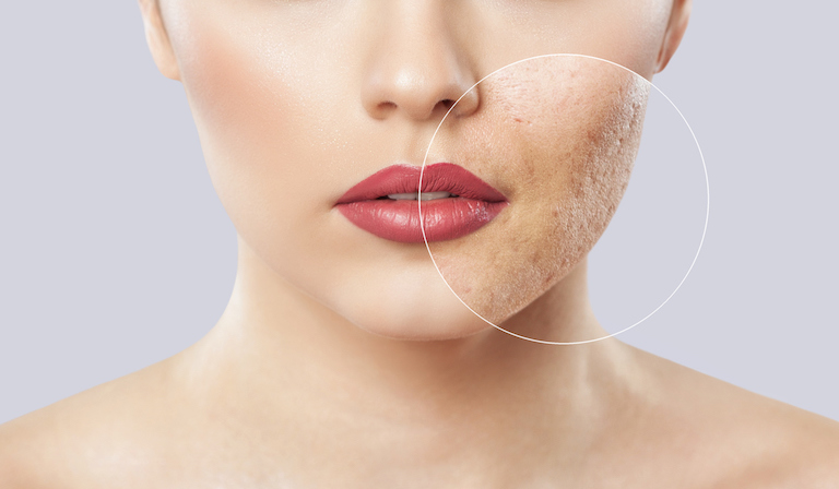 skin with acne healthista