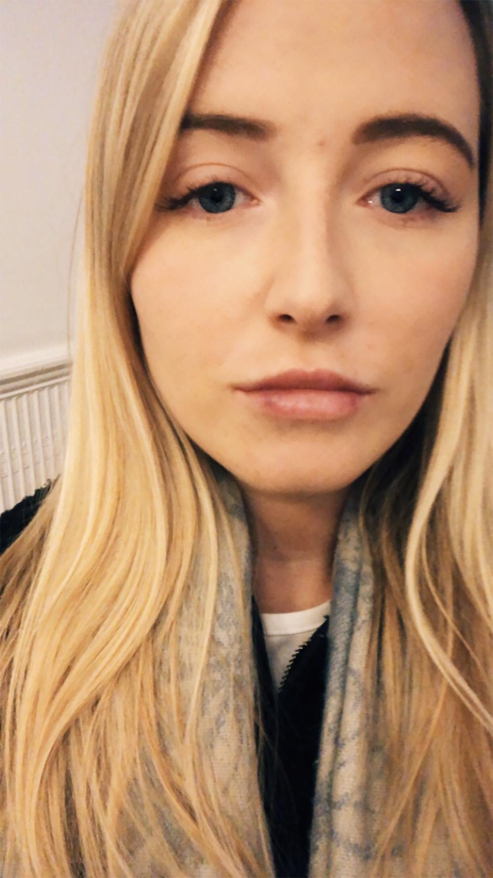 olivia lips bruised
