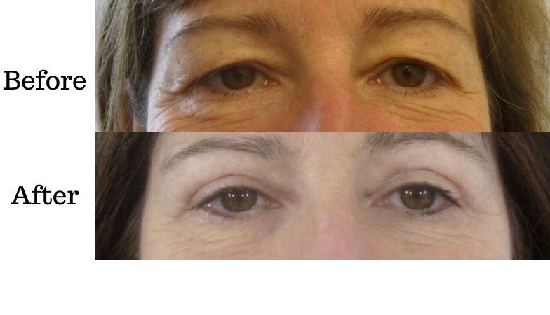 The 30-minute eye lift that transformed this woman's face