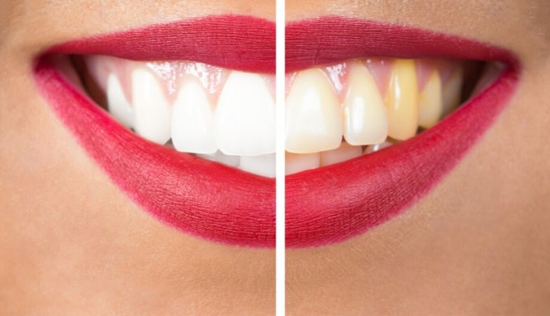 What's sugar really doing to your mouth? The dentist's guide