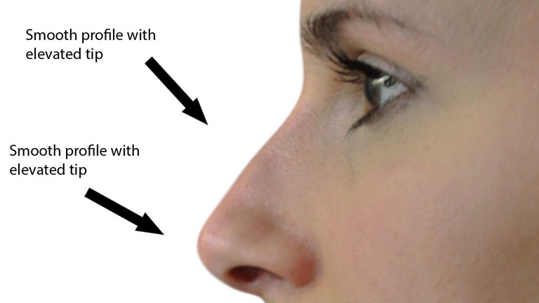 after-nose-fillers,-nose-fillers-by-healthista.com