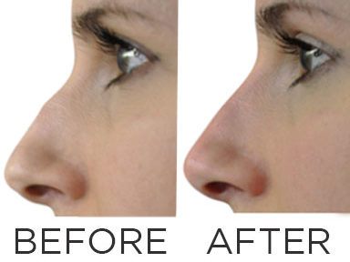 before-and-after-nose-filler,-nose-fillers-by-healthista.com