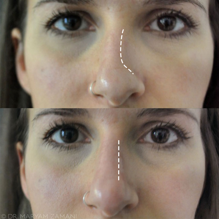 before-and-after-nose-filler-treatment-front,-nose-fillers-by-healthista.com