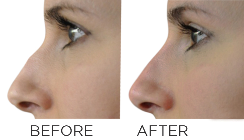 I had nose fillers and this is what happened