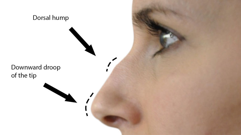 before-nose-filler-treatment,-nose-fillers-by-healthista.com