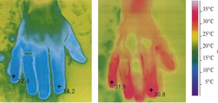 hands after-Raynaud's Syndrome