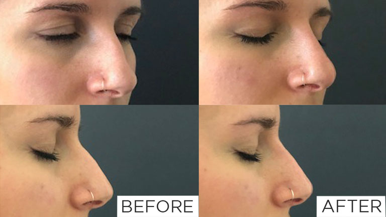 nose-filler-before-and-after,-nose-fillers-by-healthista.com