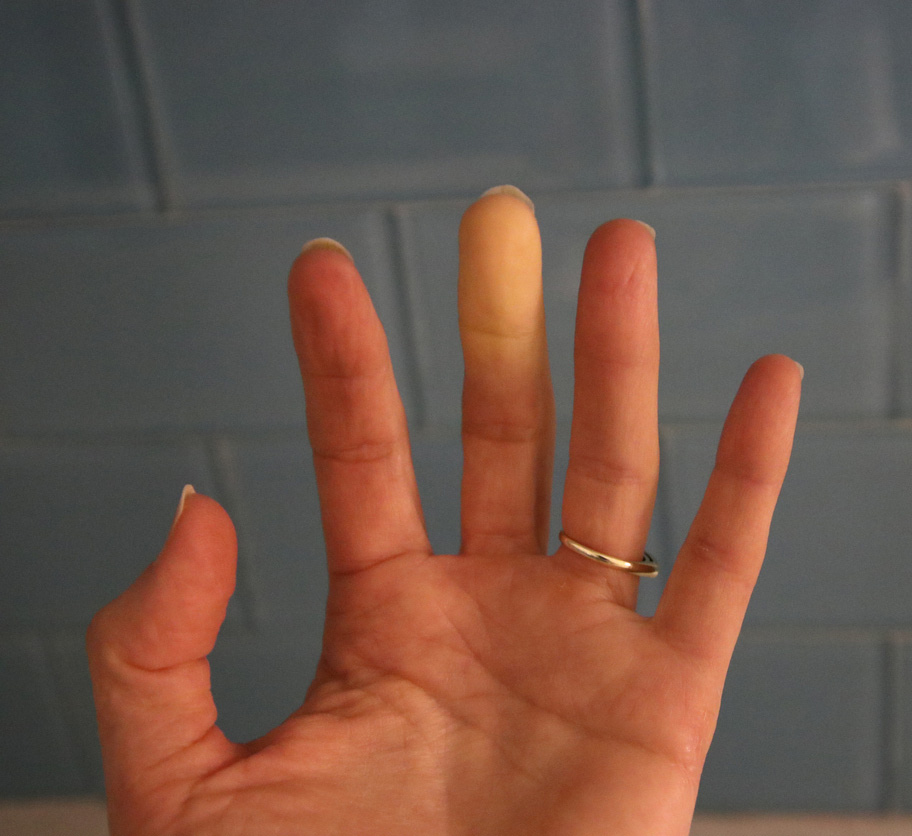 raynauds-pic.jpg-Raynaud's Syndrome