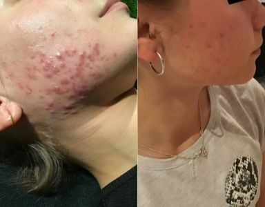 Young LDN - 'the skincare clinic that helped to clear my acne' FEATURED