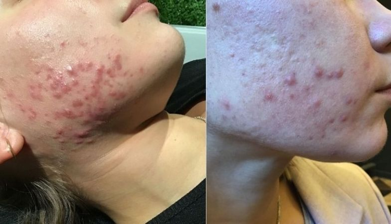 'The skincare clinic that helped clear my cystic acne'