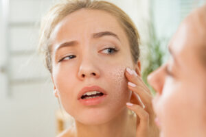 8-iron-deficiency-symptoms-you-may-not-know-about-woman-with-dry-skin.jpg