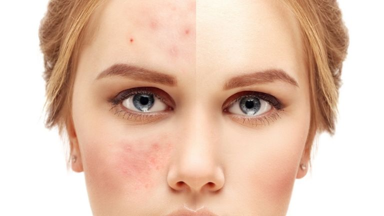 Here's what your spots are trying to tell you about your health MAIN