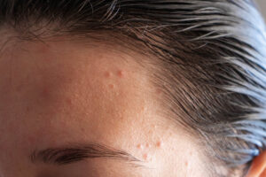 Heres-what-your-spots-are-trying-to-tell-you-about-your-health-woman-with-forehead-acne.jpg