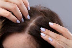 healthy shiny hair scalp